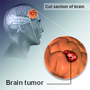 Allergies cut risk of developing deadly brain tumors