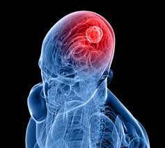 Gene variant that ups risk of brain tumours discovered