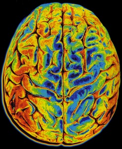 Brain areas and mechanisms associated with depression and anxiety identified