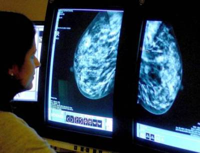 Screened women reduce risk of dying from breast cancer by 40pc