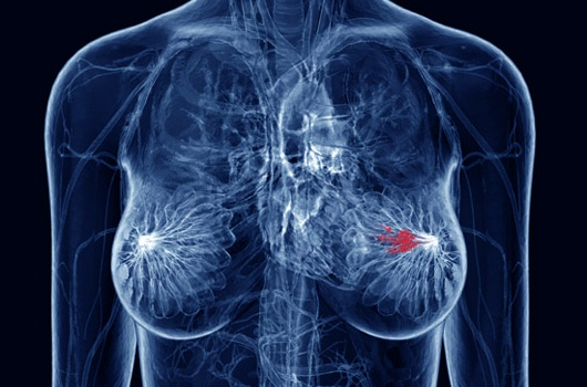 16 new genes that will better predict breast cancer survival identified