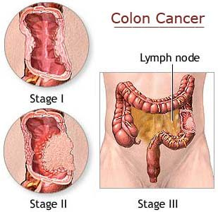 New path discovered for colon cancer drug discovery