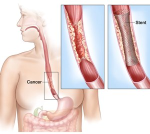 4 Genetic variants linked to esophageal cancer and Barrett's esophagus identified