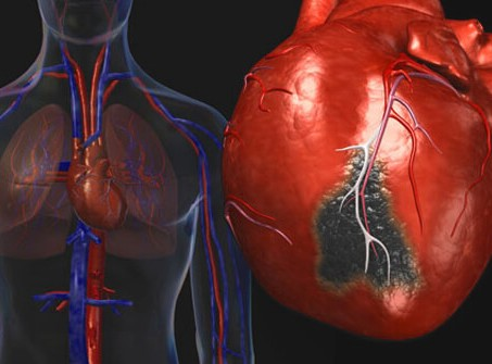 Now, assessing heart disease risk is within arm's reach, says study
