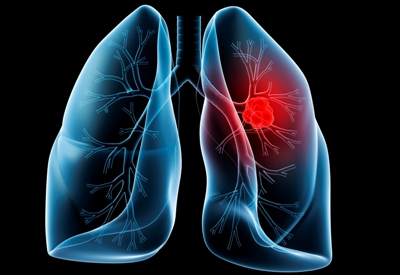 New lung cancer find paves way for better therapies
