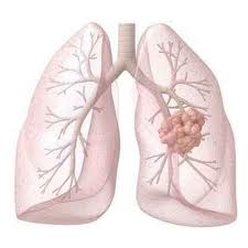 New way of treating lung cancer soon