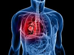People with fatal lung cancer may one day benefit from targeted therapies