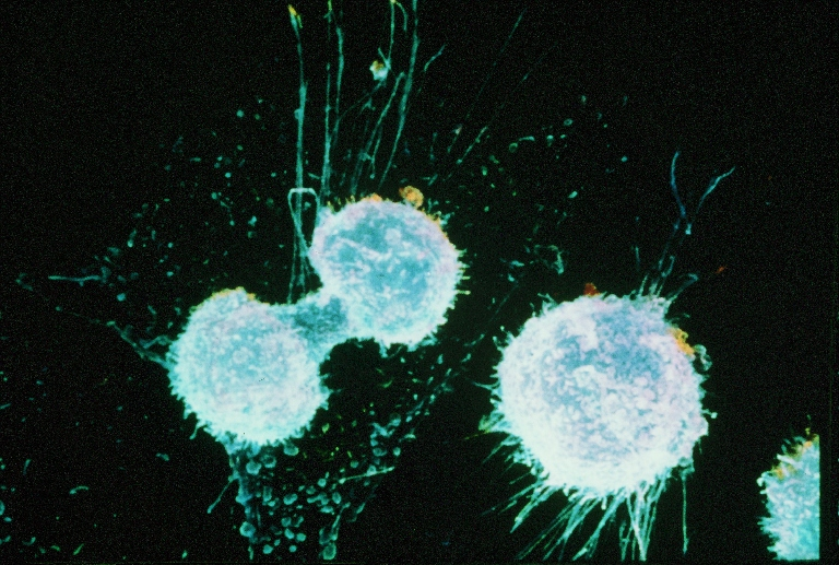 Simple ovarian cancer test to be available in 2-yrs after faulty gene discovery
