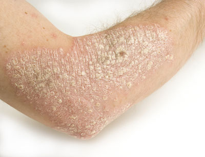 Psoriasis occurs when the life cycle of skin cells speeds up, resulting 2