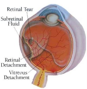 Beware! Those flashes in eye could mean retinal detachment