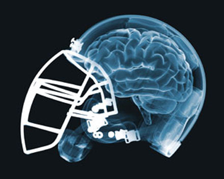 No link between contact sports and brain disease: Study