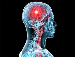 What hinders stroke recovery