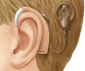 Ear implant may help regrow auditory nerves: Study