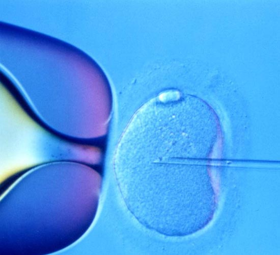 High multiple births due to fertility treatments: Study