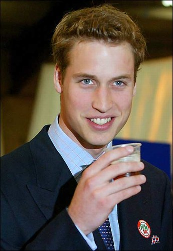 prince william bald patch. prince william bald spot.