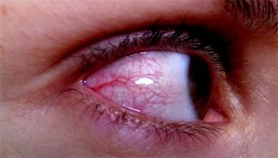 Red Eyed People Perceived As Sad And Unattractive Topnews