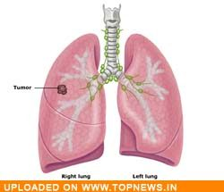 Asian cancer have lung