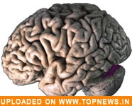 Whole brain radiation ups cancer patients' learning, memory problems risk
