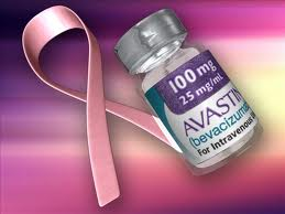 Avastin delays ovarian cancer progression