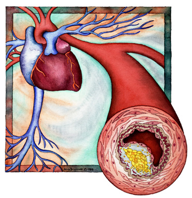 Here's how good cholesterol turns bad