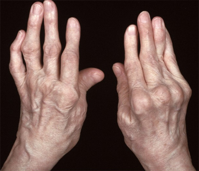 Cure for rheumatoid arthritis found in genes