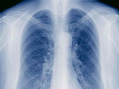 Special immune cells keep TB in control: study