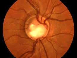 Outside temperatures, sun exposure and gender play role in glaucoma risk
